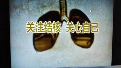 四川省疾控中心结防所荣获全国结核病科普宣传作品一等奖